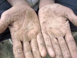Arsenic Hands